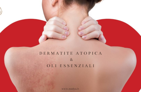 dermatite atopica & oli essenziali